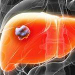 Tác dụng của nấm lim xanh đối với bệnh gan