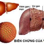 Công dụng nấm lim xanh giúp hết bệnh gan hiệu quả