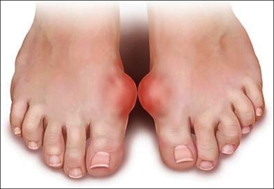 Sự thật về nấm lim xanh hỗ trợ giúp hết bệnh gout