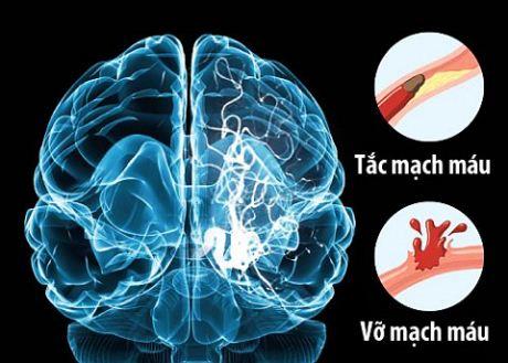 Tai biến mạch máu não rất nguy hiểm