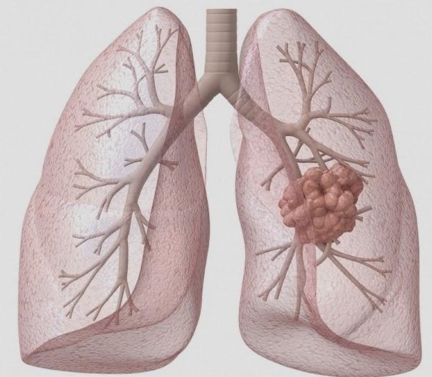 nấm lim xanh trị ung thư phổi