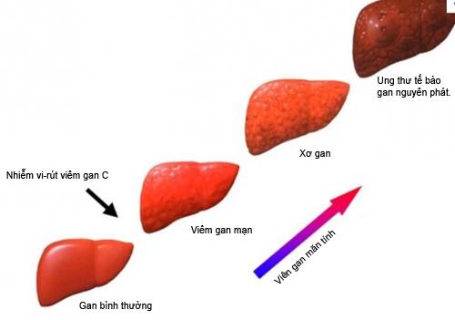 nấm lim làm lành ung thư gan